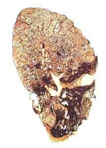 Corte de um pulmão atingido por silicose
